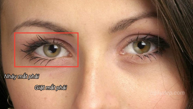 Bị nháy mắt phải là điềm gì